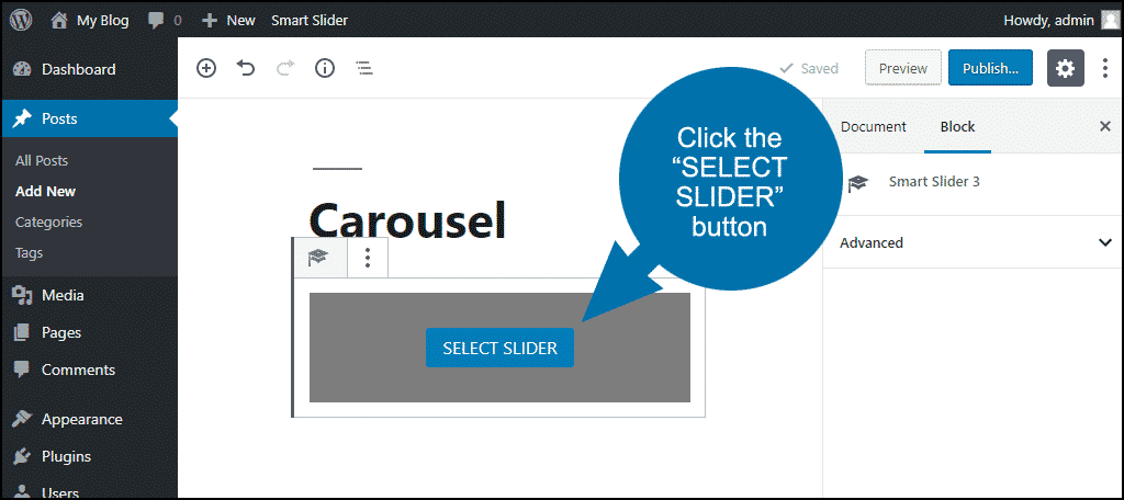 "click the ""SELECT SLIDER"" button"